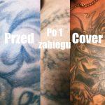 laserowe usuwanie tatuazy nowy sacz