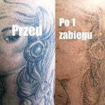 usuwanie tatuazy Nowy Sacz efekty 1