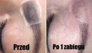 zalety usuwania tatuaży nowy sacz